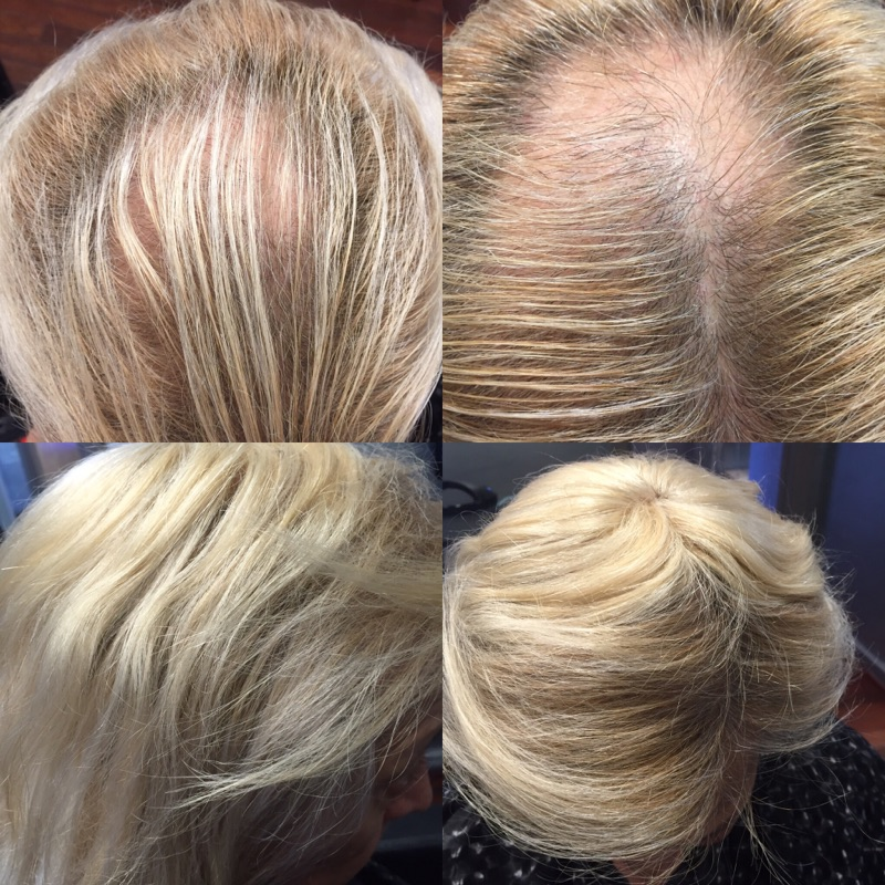 Hair Extensions For Very Thin Hair 2018 Forensicanth